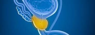 Benign Prostat Hiperplazisi (BPH) Kanser Midir? - Prof. Dr. Volkan Tuğcu   drvolkantugcu.com